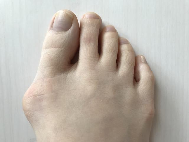 外反母趾 痛みがなくてもほおっておくと悪化する?自分でできる